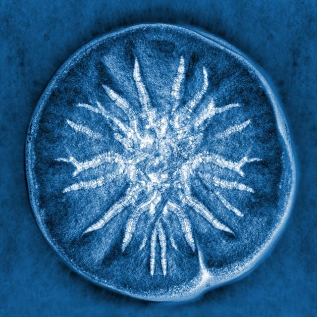 Все ваши попытки защититься от микробов бессмысленны