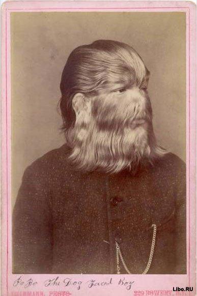 Волосатый человек бродит по Европе